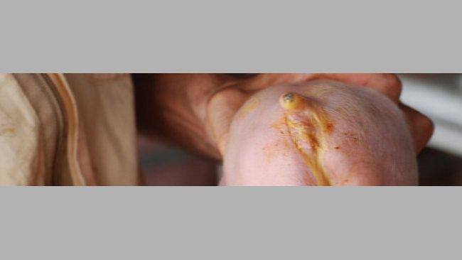 Diarrea neonatal causada por E. Coli. (Cortesía Dr Hector Patullo)