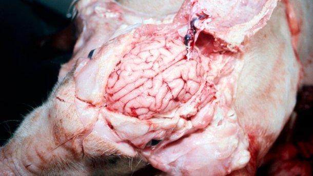Figura 5. Cérebro visivelmente húmido.