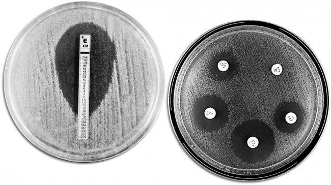 Técnicas clássicas de avaliação da resistência a antibióticos. À esquerda, E-TEST que permite medir a concentraçãomínima de antibiótico que impede ocrescimento bacteriano. À direita, um antibiograma em que são observados diferentes auréolas de inibição do crescimento por parte dos antibióticos.