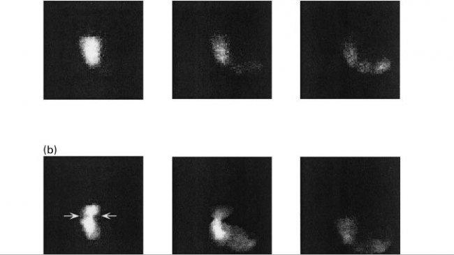 Figura 1. Imagens do esvaziamento gástrico em porcosalimentados comuma dieta baseada emamido (a), polpa de beterraba (b) e farelo de trigo aos10, 60 e 120 minutos pós-ingestão (Fonte: Guerin et al., 2001).