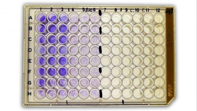 Figura 2b: Seroneutralização (SN) para a detecção de anticorpos contra o vírus da diarreia viral bovina (BVDv) no soro.