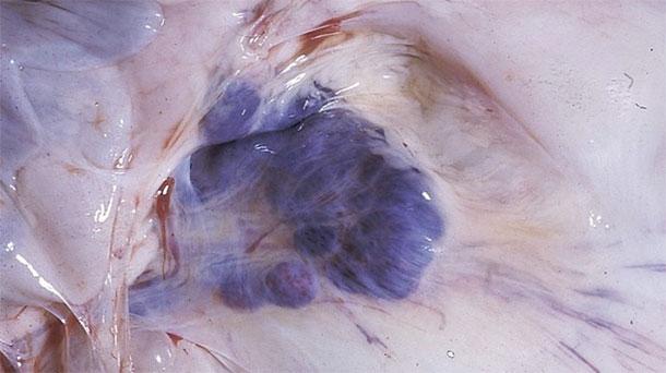 Fotografia 6. Descobertas nas necrópsia em porcos afectados. Notam-se as hemorragias nos gânglios linfáticos mesentéricos