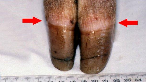 Figura 1. Borda coronária [seta]. Note-se o crescimento desigual e o início do aparecimento de gretas na unha.