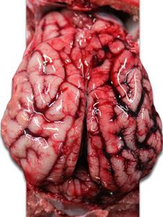 Cervello suinetto. Congestione dei vasi venosi nell'emisfero cerebrale destro.