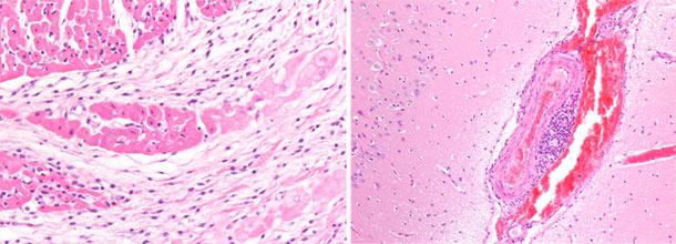 Congestione dei vasi venosi nell'emisfero cerebrale destro. Miocardio ventricolo dx.  necrosi focale basofila del miocardio con microvacuolizzazione del sistema di conduzione
