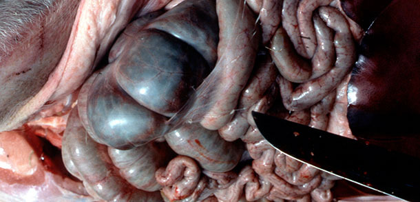 Depósitos peritoneales de fibrina típicos de App agudo.