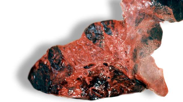 Lesiones hemorrágicas en el parénquima pulmonar