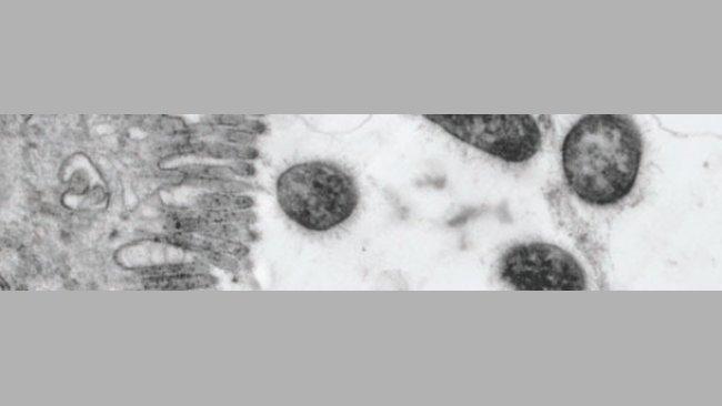 Bacteria ETEC
