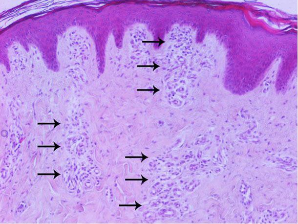 Análisis histopatológico de la piel: aumento de la vascularización principalmente en la dermis superficial y media