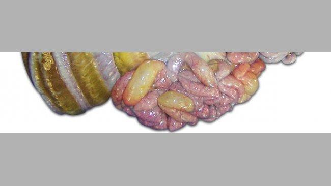 Factores de riesgo asociados a la enfermedad de los edemas